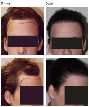 trapianto-capelli-femminilizzante-2